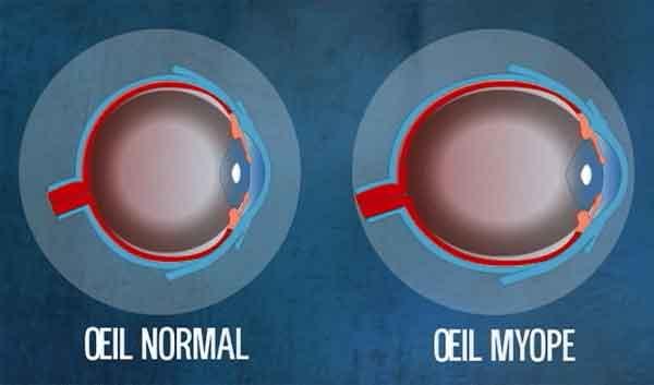Myopie : oeil myope